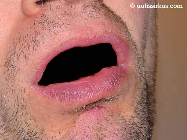 Miehen suu näyttää mustalta ja ylähuulen alus pullealta
